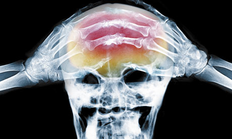 X-Ray of Headache